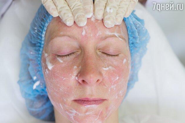 Процедура введения геля КОЛЛОСТ®: противоспалительная маска