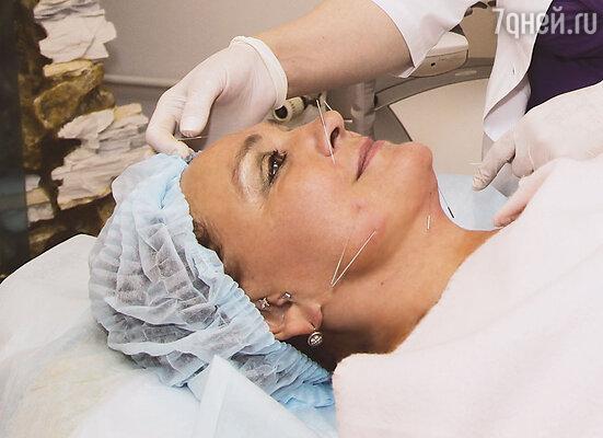 В меню красоты помимо ежедневного и главного инструмента доктора Мухиной – сеанса корпорального иглоукалывания, который помогает снизить аппетит и запустить процесс похудения и оздоровления организма в целом, появляются новые процедуры