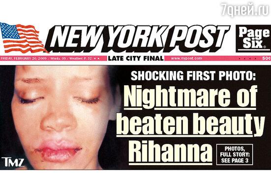 Медики быстро оценили увечья: у Рианны отекли глаза, были разбиты скулы, нос и губы