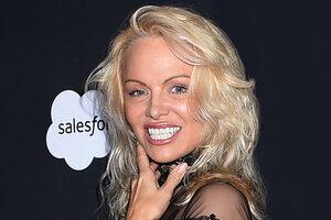 Обратный эффект: 10 знаменитых красавиц, ставших жертвами пластики