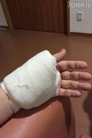 Рука Гарика Харламова