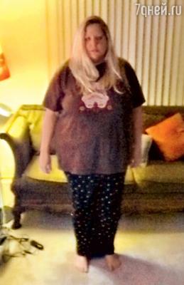 До резекции желудка Нэнси весила 125килограммов, а через год похудела до 72