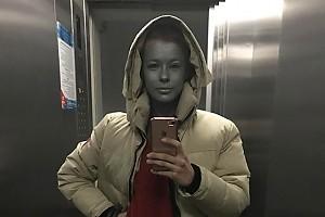 Что случилось с лицом Катерины Шпицы?